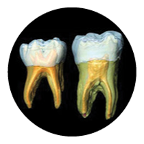 Root Canals | Smile Again - Edmonds, WA Dentist